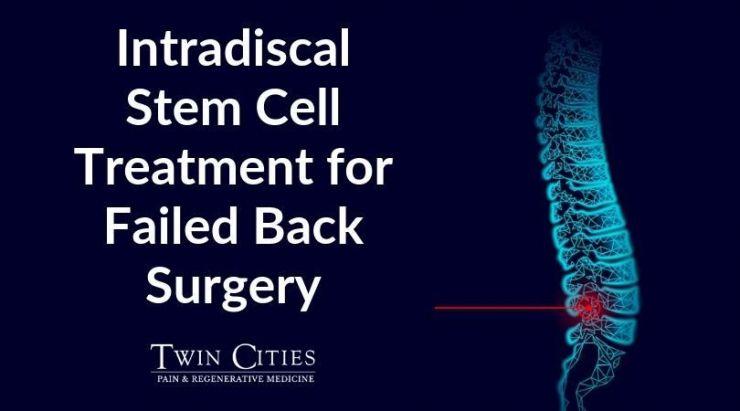 Intradiscal Stem Cell Treatment for Failed Back Surgery.jpg