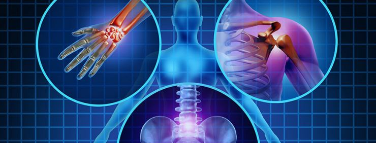 Joint Pain and Soft Tissue